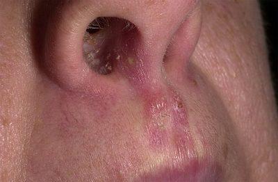 Молочница в носу