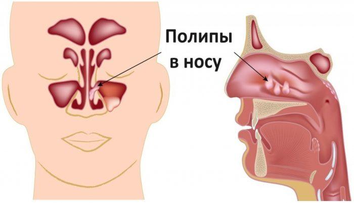 Новообразования в носу