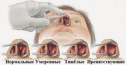 Стадии полипоза