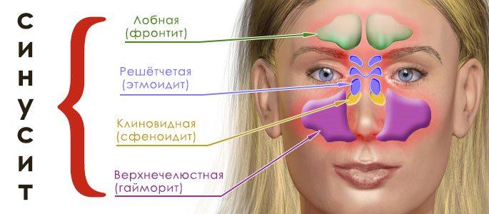 Виды острого синусита