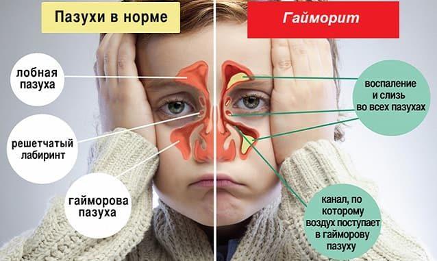 Болезнь гайморит